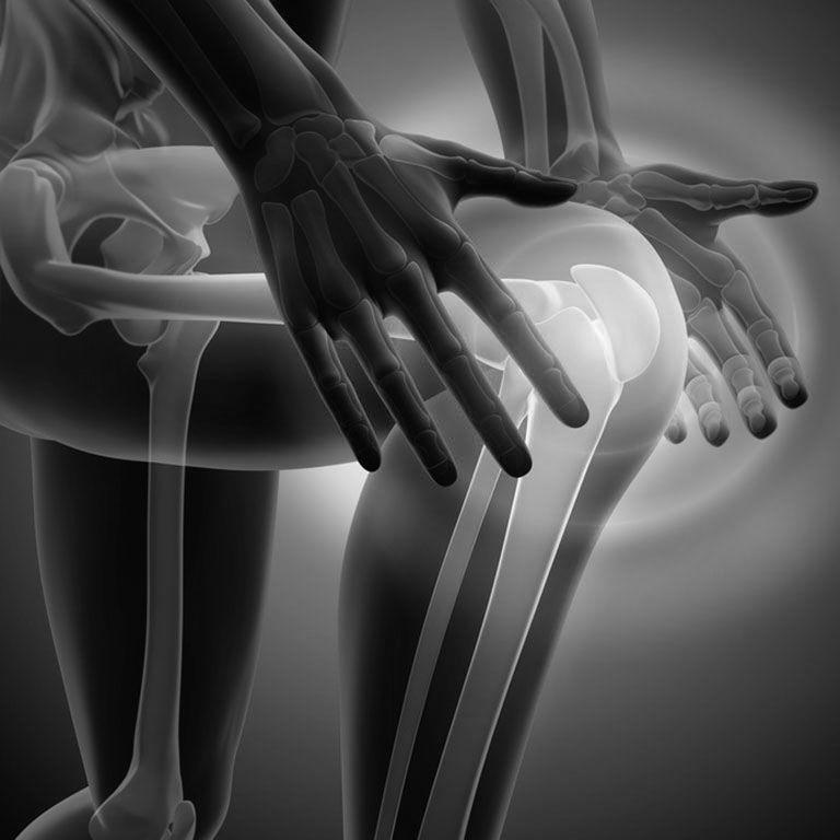 Grafik mit Schmerz im Knie
