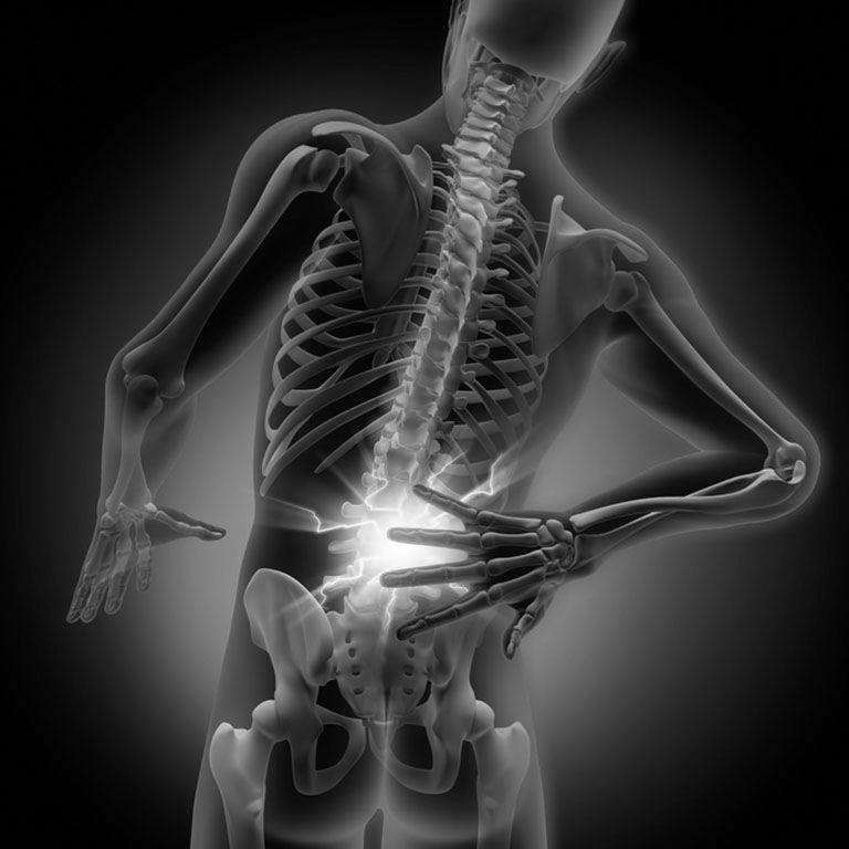 Grafik mit Schmerz in der Wirbelsäule
