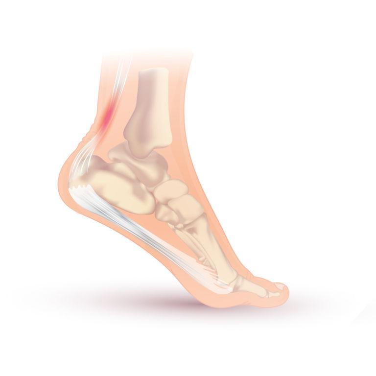 Verletzung an der Achillessehne
