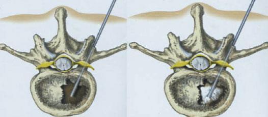 Einbringen der Hohlnadel - Einspritzen des Zementes