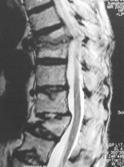 MRT einer ausgepraegten osteoporotischen Deformitaet