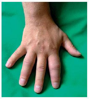 Foto Daktylitis bei Spondylarthropathie