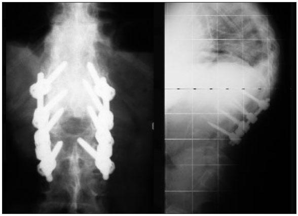 Röntgen Dors. Fusion Th 12-L2, semirigid L2-L3, Osteotomie Th 12-L 1, PLIF L1-2
