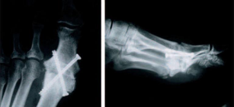 Röntgen Fusion mit gekreuzten Lochschrauben
