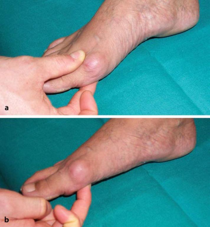 Foto Prüfung der TMT-Gelenk-Mobilität