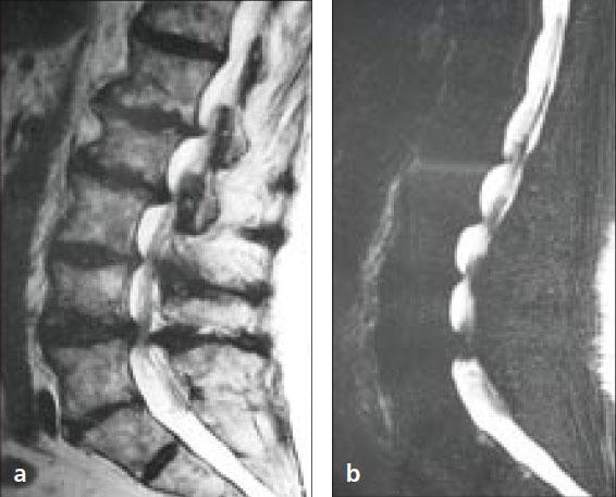 Abb. 1 MRT-mit-Perlenkettenphänomen-bei-lumbaler-Spinalkanalstenose-MRT-Myelographie