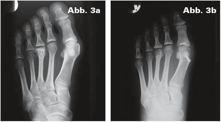 Röntgen Metatarsalgie Mittelfussschmerz