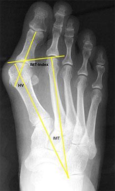 Röntgen Radiologische Beurteilung des Fußes